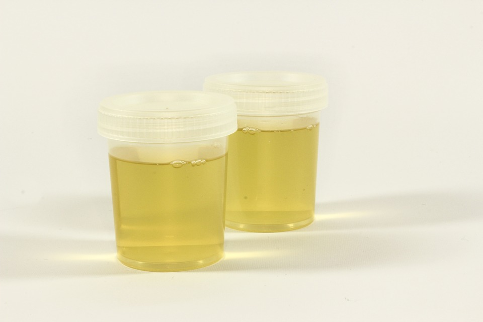 Is It Legal To Use Synthetic Urine On A Drug Test?